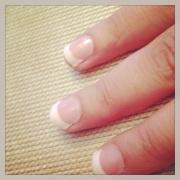 Post Manicure